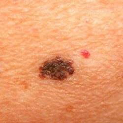 How To Detect Melanoma And Its Treatment Through Cosmetic Surgery